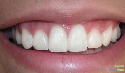 carillas-en-resina-estetica-dental-home-despues-1