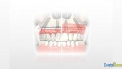 implantes-all-on-four-1