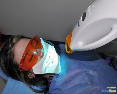 proceso-blanqueamiento-dental-medellin-zoom-advanced-power-600px