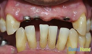 Before-implants1