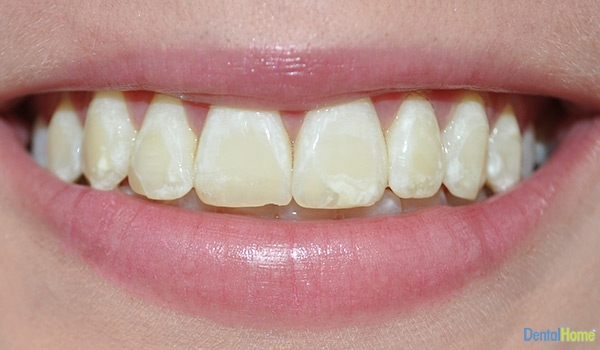 Before-Veneers2