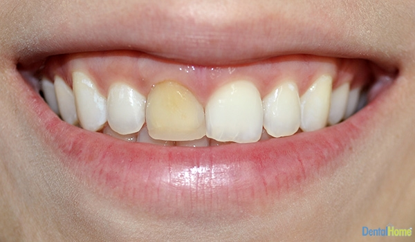 Before-Veneers3