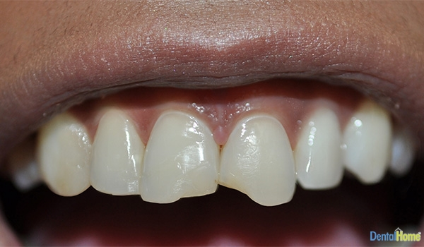 Before-Veneers4