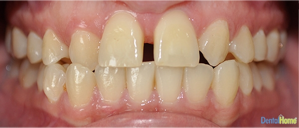 Before-Veneers5