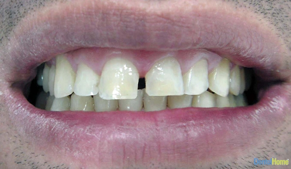 Before-Veneers6