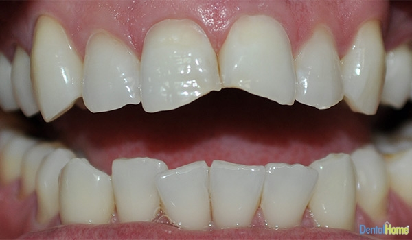 Before-Veneers7