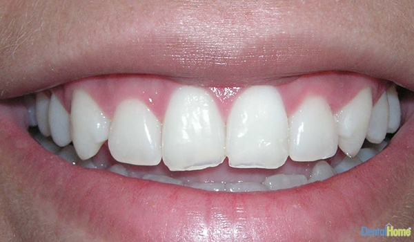 Before-Veneers8