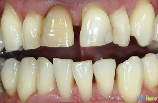 Before-Veneers9