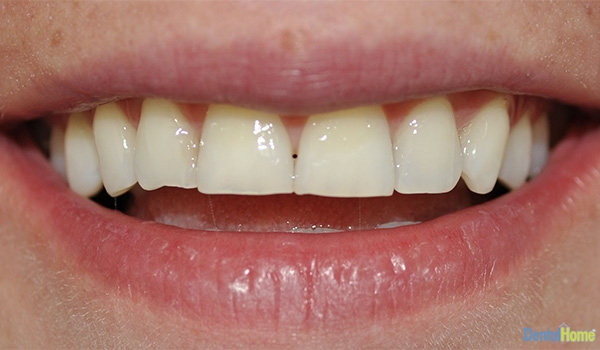 Before-Veneers10