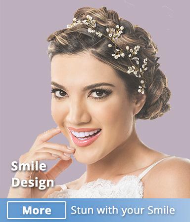 smile-design-medellin-colombia