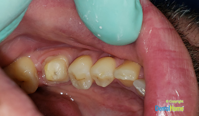 Before-Zirconia Crowns
