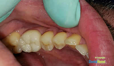 After-Zirconia Crowns