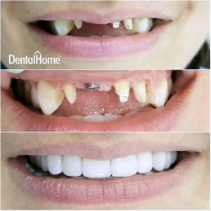 dental implants colombia