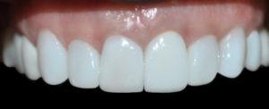 Dental implants medellin colombia 4