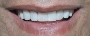 Dental implants medellin colombia 5