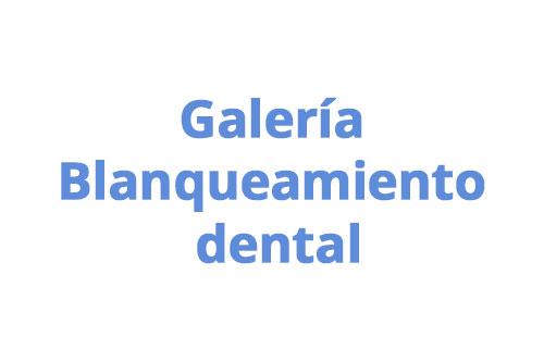 especialidad-02-blanqueamiento-dental-medellin