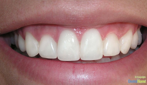 Carillas dentales medellin colombia