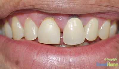 Before-Rehabilitacion Oral - Coronas