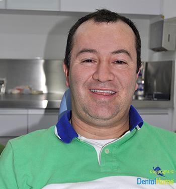 dental-home-estetica-dental-testimonios-albeiro-lopera