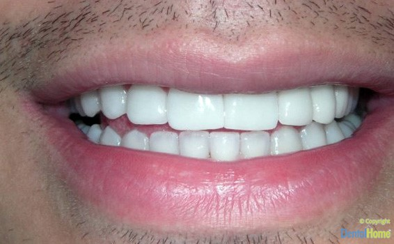 After-Lentes de contacto dental