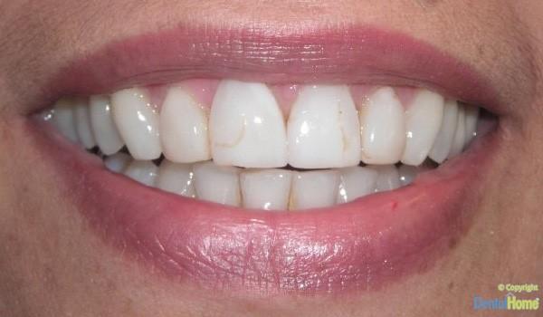 Before-Lentes de contacto dental