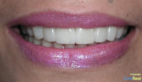 After-Lentes de contacto dental