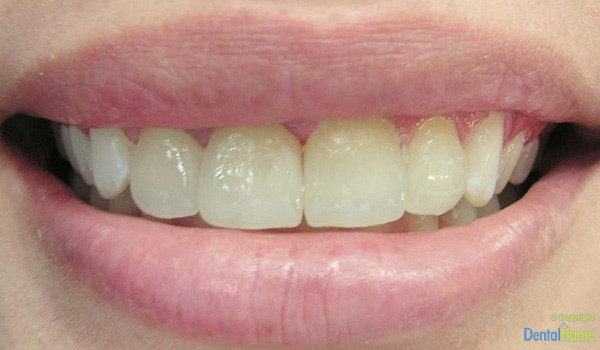 Before-Lentes de contacto dentaL