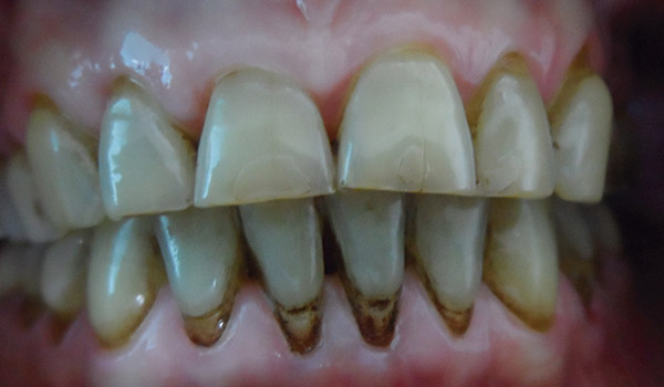 Before-Higiene Oral