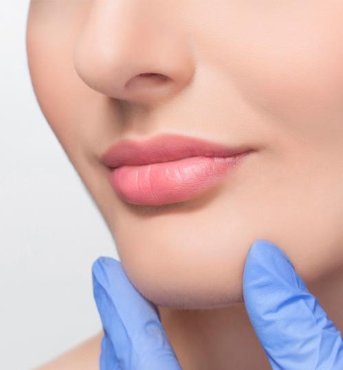 aplicacion de acido hialuronico en medellin en los labios