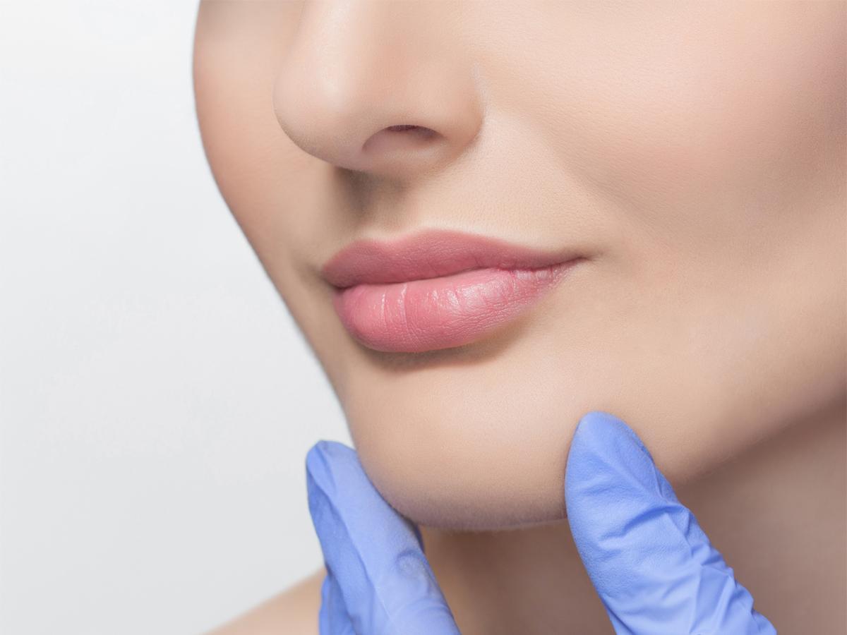 acido hialuronico en los labios perfilado medellin que es
